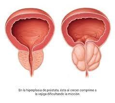 Embolización de Próstata